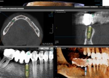 snimak zuba i vilice u tri dimenzije 3d snimakcbct